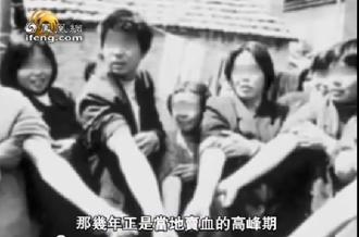1 novembre 2016 : Trovo finalmente alcune fotografie che documentano l'epidemia (da Gao Yojie) LA CAMPAGNA PER LA DONAZIONE DI PLASMA - Giovani donatori dell'Henan che mostrano le cicatrici sulle loro braccia per aver donato il plasma